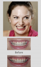 Cosmetic Dentist Perth
