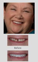 dentist western australia