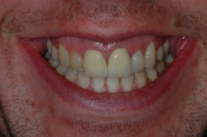 Tooth Teeth Whitening