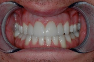 Completed Tooth Teeth Whitening