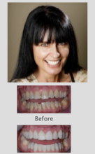 Cosmetic Dentistry Perth