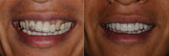 This smile cants down toward the patient's left too. There are also asymmetrical gum heights. In this case we only did the front 4 damaged teeth with new crowns, one side crown with the black margins, corrected gum heights with laser, and bleaching of the dark canine teeth.