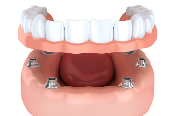 The Main Considerations and Advantages of All-on-Four Implants