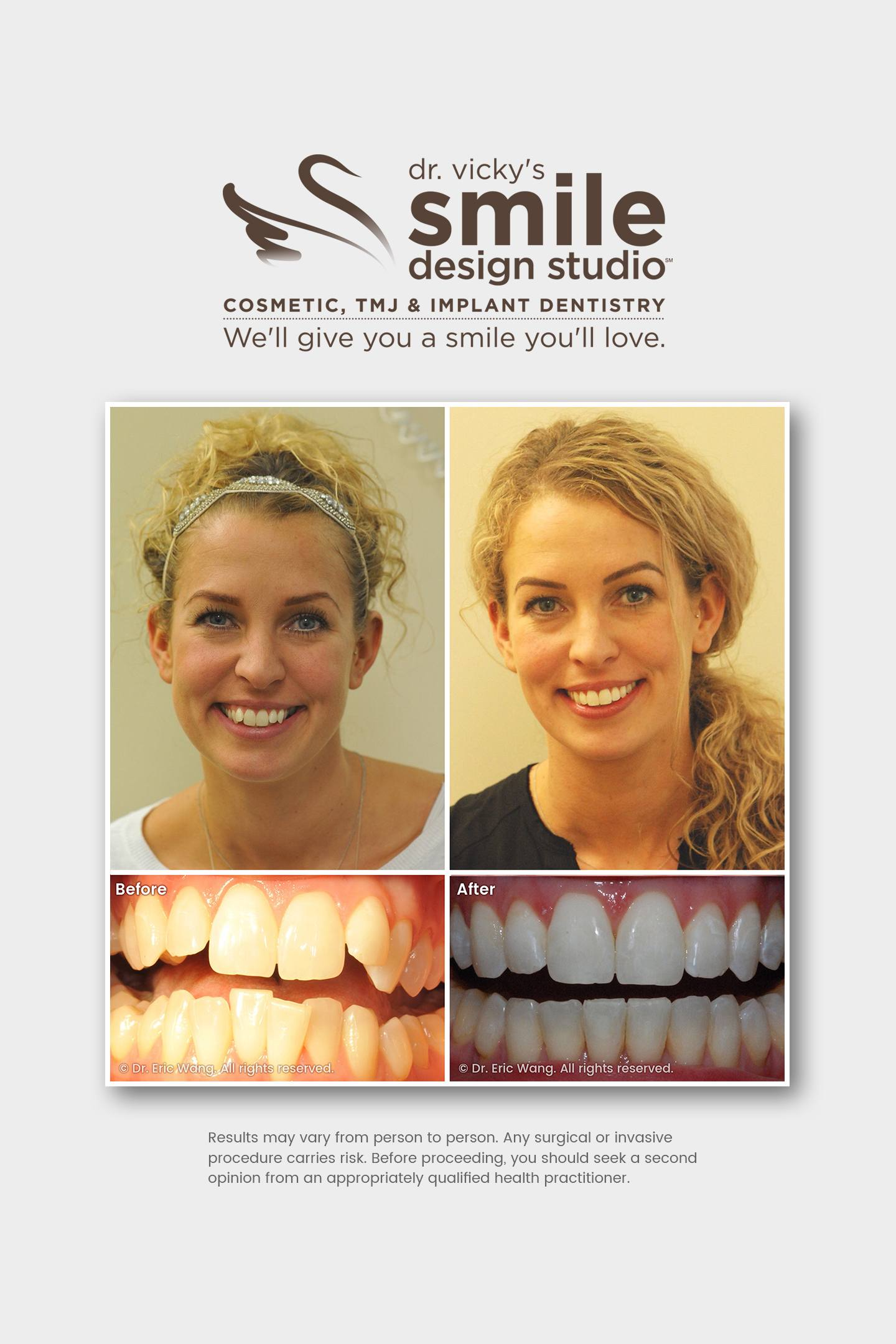 Neuromuscular Orthodontic Treatment – Damon Clear – Whitening