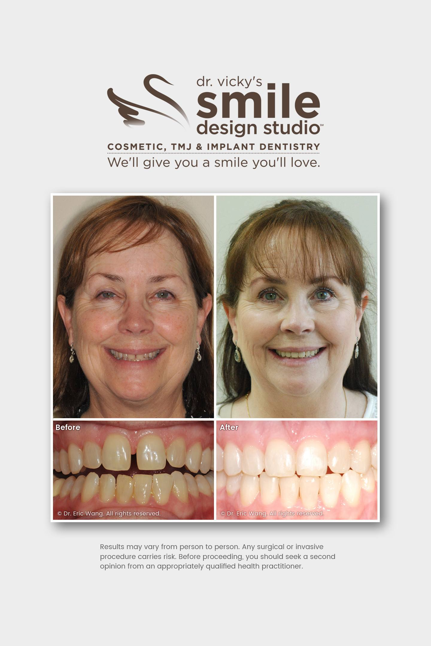 Neuromuscular Orthodontic Treatment – Damon Clear